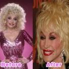thumbs la chirurgie plastique des celebrites 004 La Chirurgie Plastique des Celebrités  (16 photos)