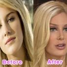 thumbs la chirurgie plastique des celebrites 005 La Chirurgie Plastique des Celebrités  (16 photos)