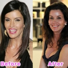 thumbs la chirurgie plastique des celebrites 007 La Chirurgie Plastique des Celebrités  (16 photos)