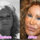 thumbs la chirurgie plastique des celebrites 009 La Chirurgie Plastique des Celebrités  (16 photos)