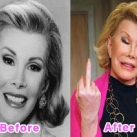 thumbs la chirurgie plastique des celebrites 011 La Chirurgie Plastique des Celebrités  (16 photos)