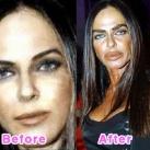 thumbs la chirurgie plastique des celebrites 012 La Chirurgie Plastique des Celebrités  (16 photos)