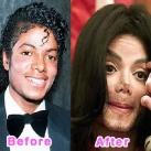 thumbs la chirurgie plastique des celebrites 016 La Chirurgie Plastique des Celebrités  (16 photos)