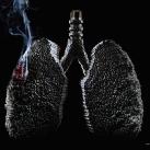 thumbs publicites anti tabac 011 Les Meilleures publicités anti tabac (74 photos)